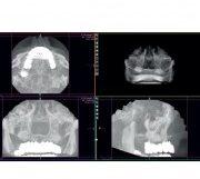 POLIDENT Poli Acryl X-Ray prah